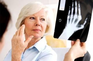 У ревматоидного артрита генетические предпосылки