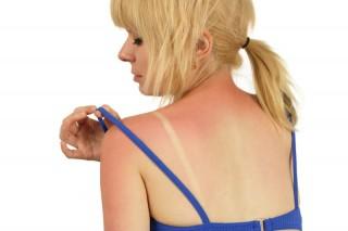 Солнечные ожоги увеличивают вероятность смерти от рака кожи
