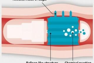 Автоматизированные таблетки вместо инъекции