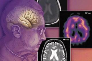 Деменция – болезнь или приговор? 8 фактов о приобретенном слабоумии