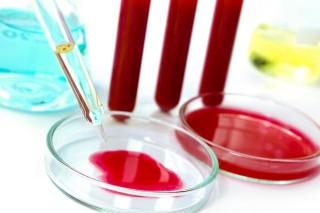 Томские ученые занялись определением шизофрении по анализу крови