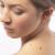 Ученые заявили о прорыве в лечении рака кожи