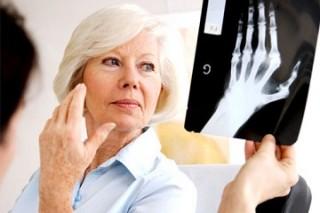 Курильщикам, потребляющим большое количество соли, угрожает ревматоидный артрит